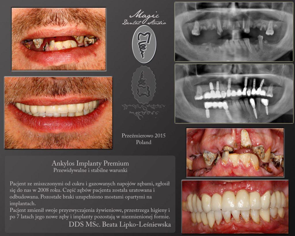 zniszczone zęby, implanty, pantomogram, uśmiech, most porcelanowy