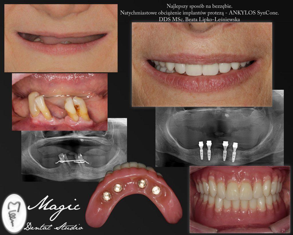 SynCone-proteza na implantach